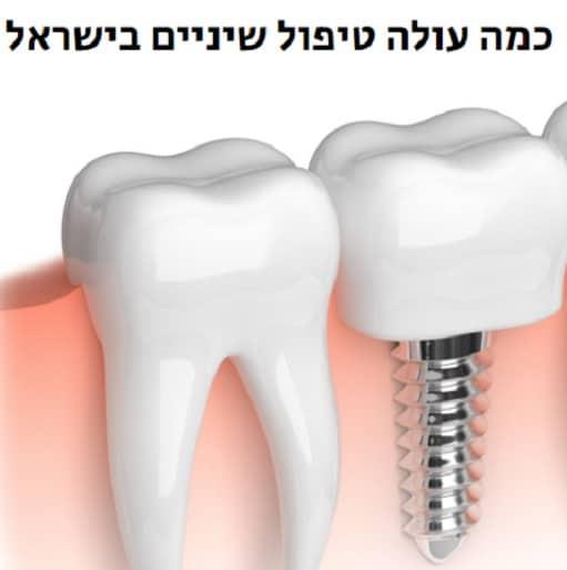 כוללים טיפול שיניים במרפאת השיניים
