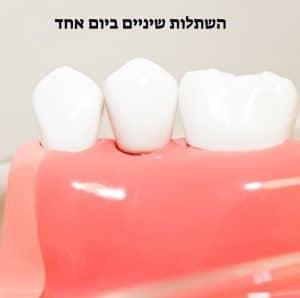 השתלות שיניים ביום אחד מספר עובדות שכדי לדעת